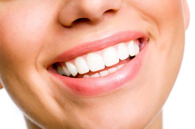 Effetti collaterali dello sbiancamento dentale.