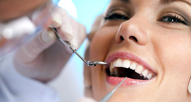 Sbiancamento dentale professionale.